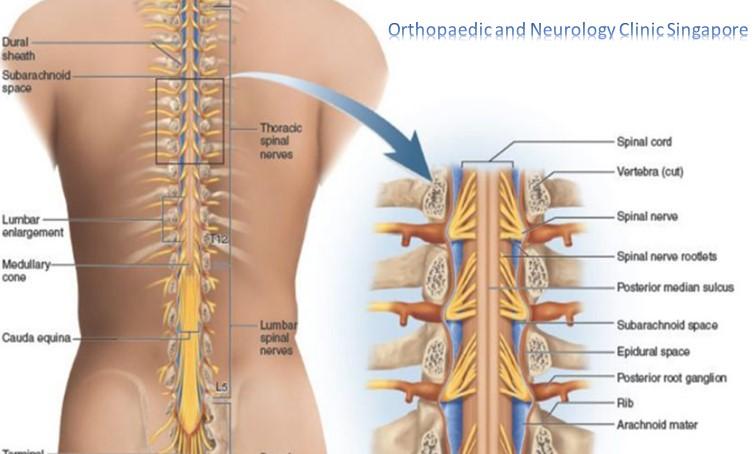 Backache Info