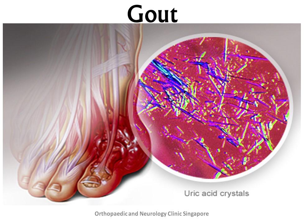 Gout Description
