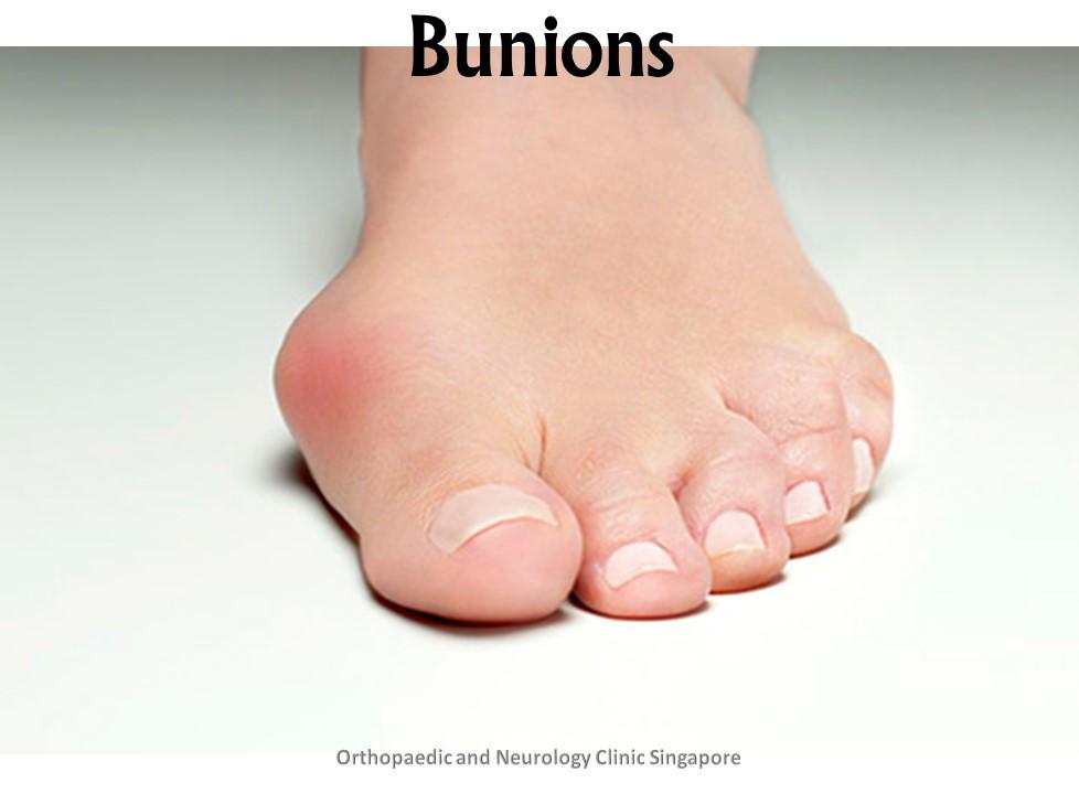 Bunions Main
