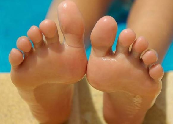 Bunions Recovery 2