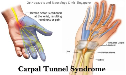 Carpal Tunnel Syndrome Main