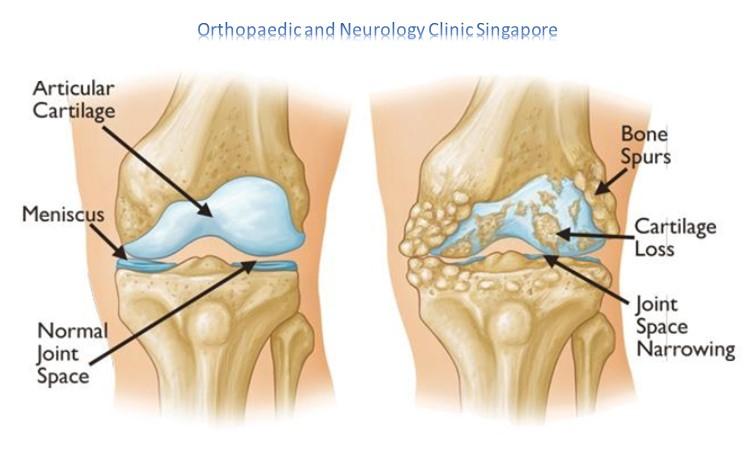 Knee Osteoarthritis Main