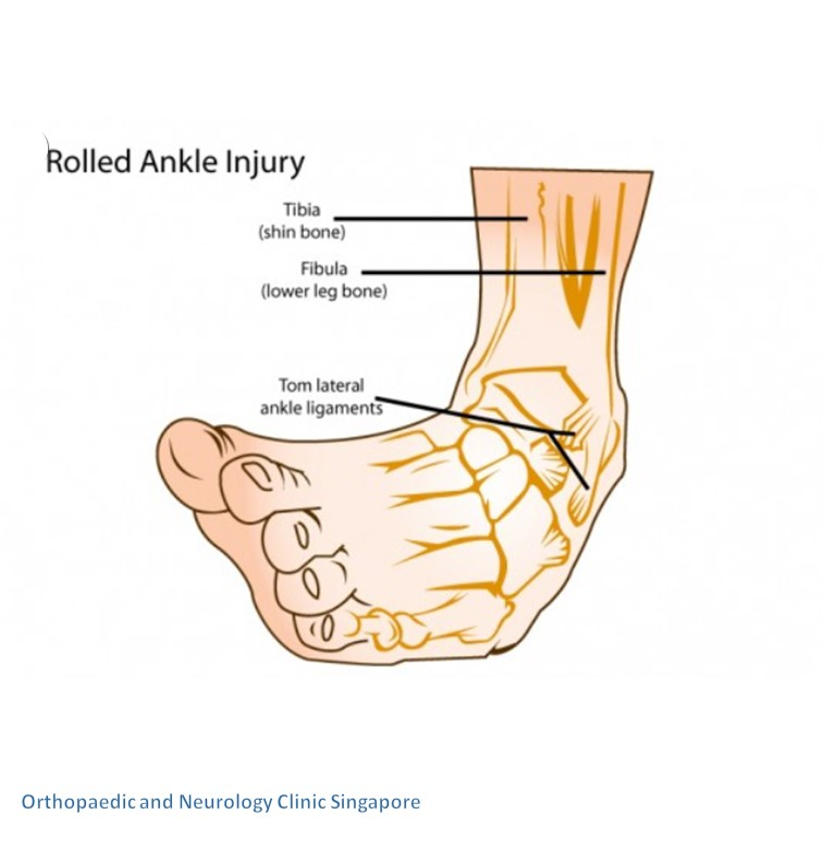 Ankle pain info