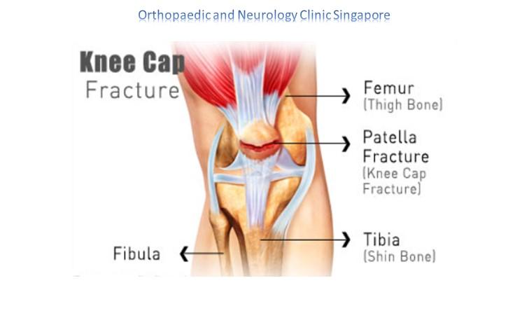 Knee Fracture Main