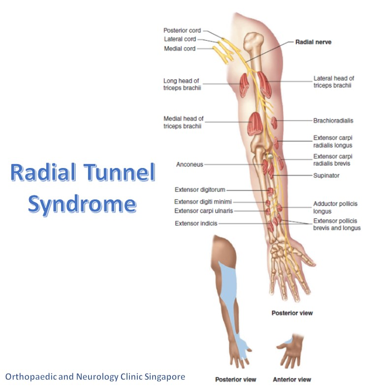 Radial Tunnel Syndrome Main